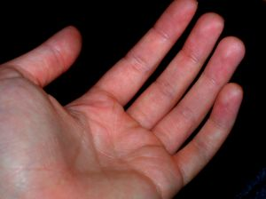 Jak swędzi lewa ręka