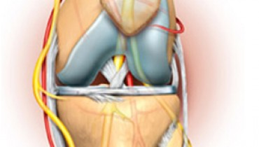 Jak poradzić sobie z bólem kolan